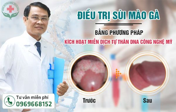 cach-dieu-tri-sui-mao-ga-duong-vat-hieu-qua